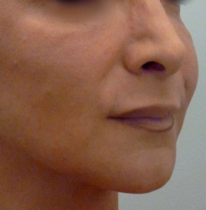 la modification chirurgical du tiers inf rieur du visage. Black Bedroom Furniture Sets. Home Design Ideas