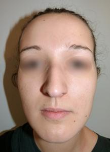grosse bosse nez de face