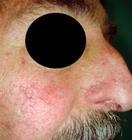 cancer extérieur du nez